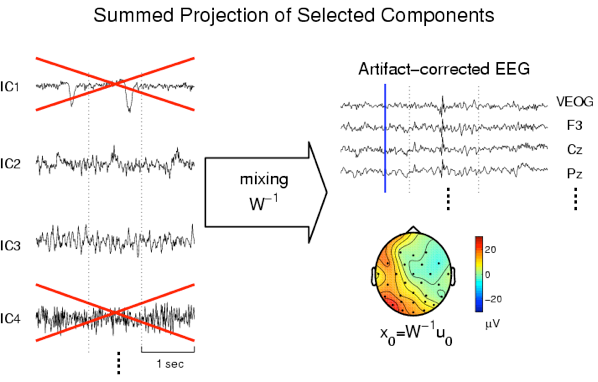 EEG artifact removal with Blind Source Separation