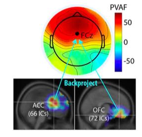 Scott Makeig, Cognitive Neuroscience